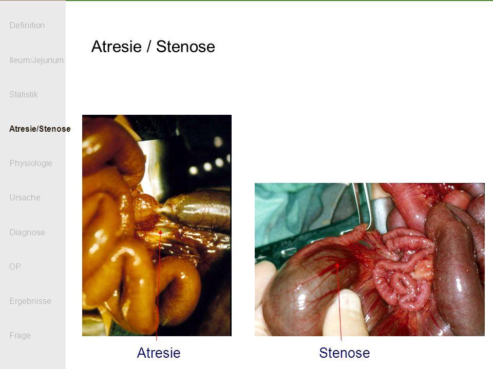 Atresie / Stenose Atresie Stenose Definition Ileum/Jejunum Statistik
