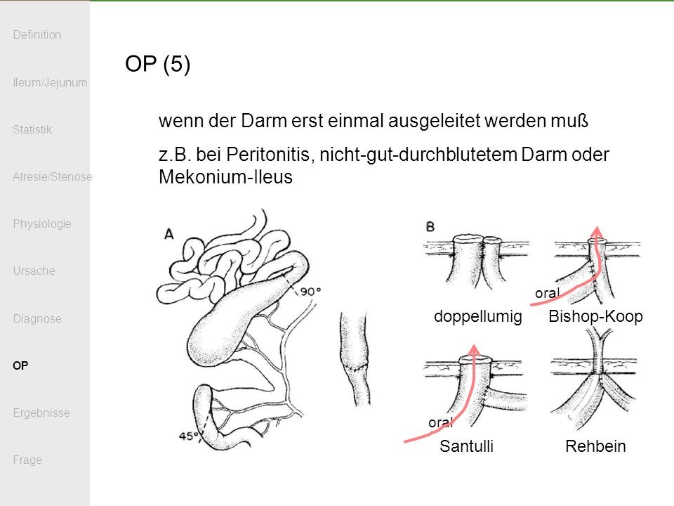 OP (5) wenn der Darm erst einmal ausgeleitet werden muß