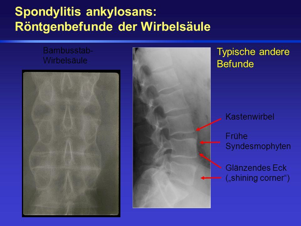 Spondylitis ankylosans: Röntgenbefunde der Wirbelsäule