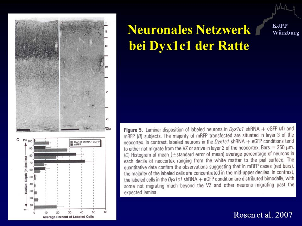 Neuronales Netzwerk bei Dyx1c1 der Ratte