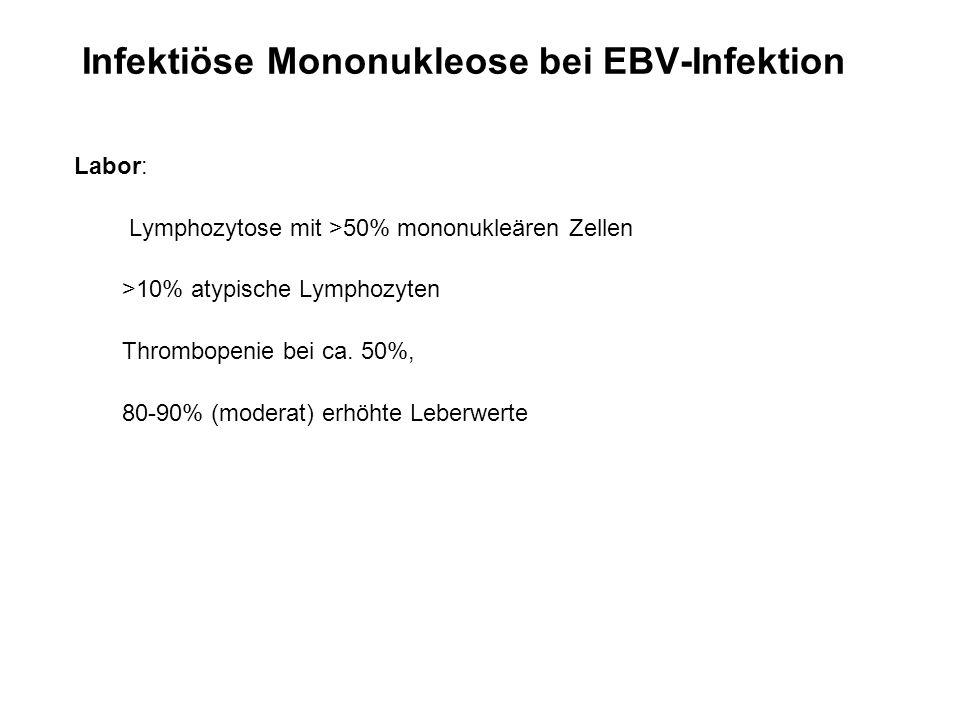Infektiöse Mononukleose bei EBV-Infektion
