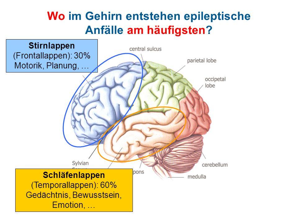 Wo im Gehirn entstehen epileptische Anfälle am häufigsten