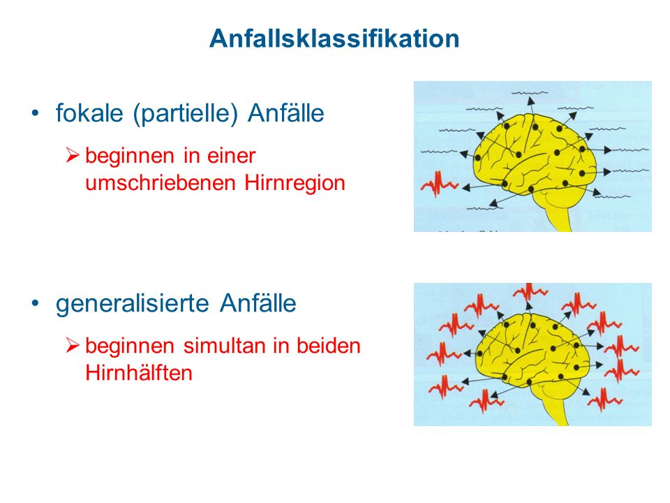 Anfallsklassifikation