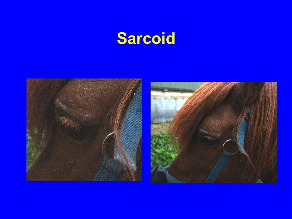 Sarcoid