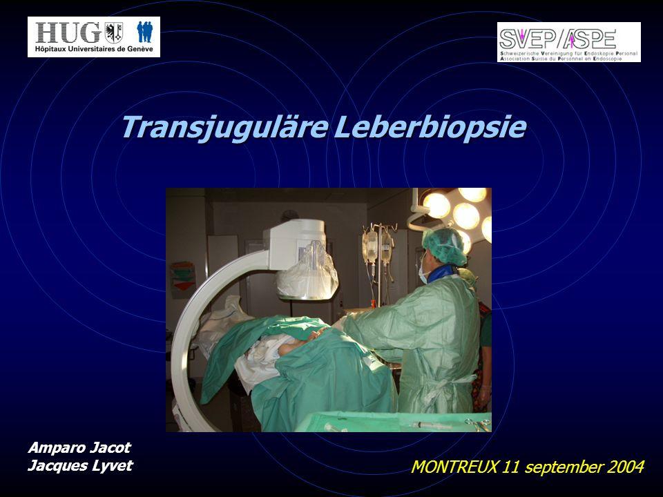 Transjuguläre Leberbiopsie