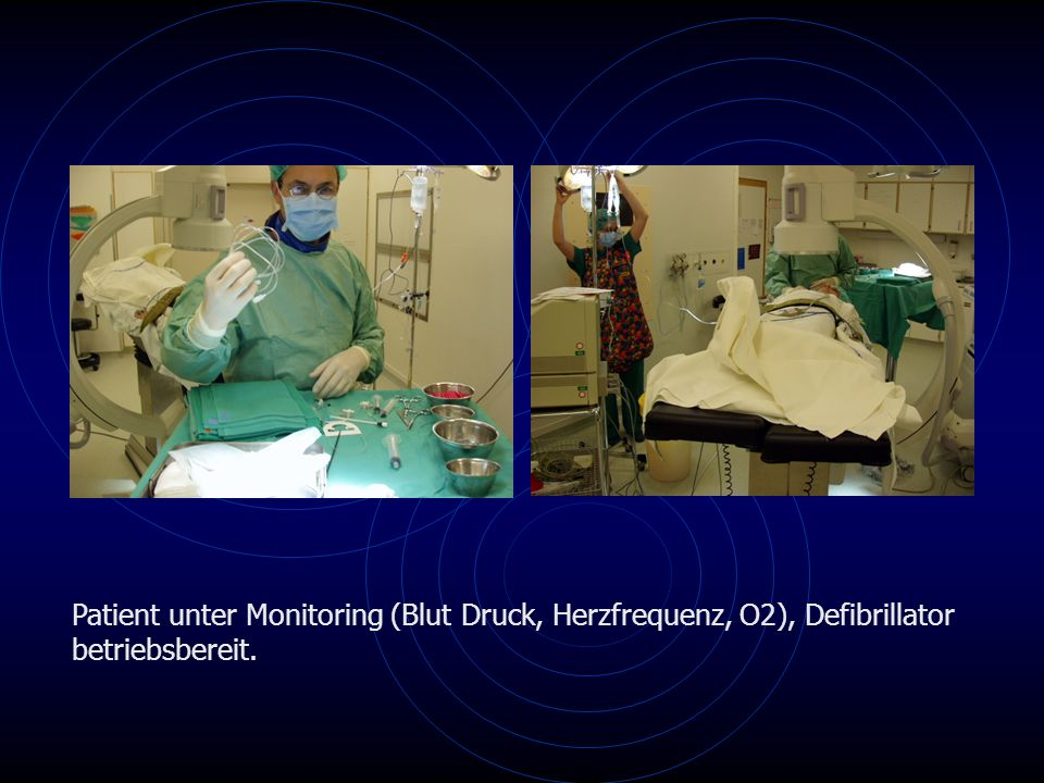 Patient unter Monitoring (Blut Druck, Herzfrequenz, O2), Defibrillator