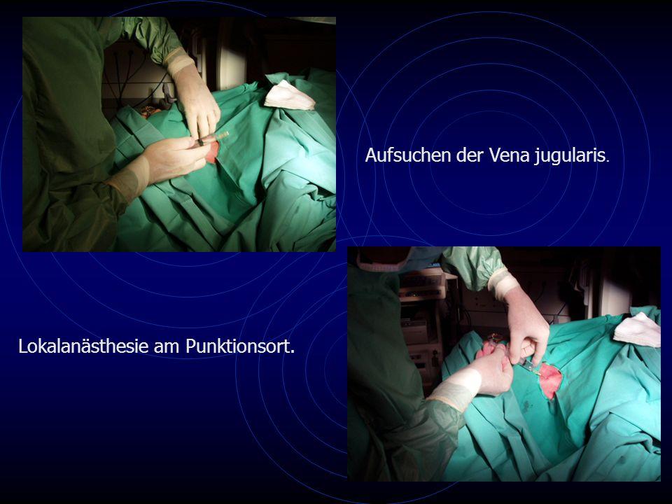 Aufsuchen der Vena jugularis.