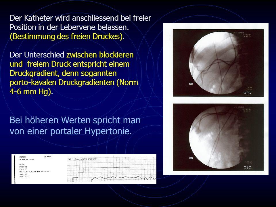 Bei höheren Werten spricht man von einer portaler Hypertonie.