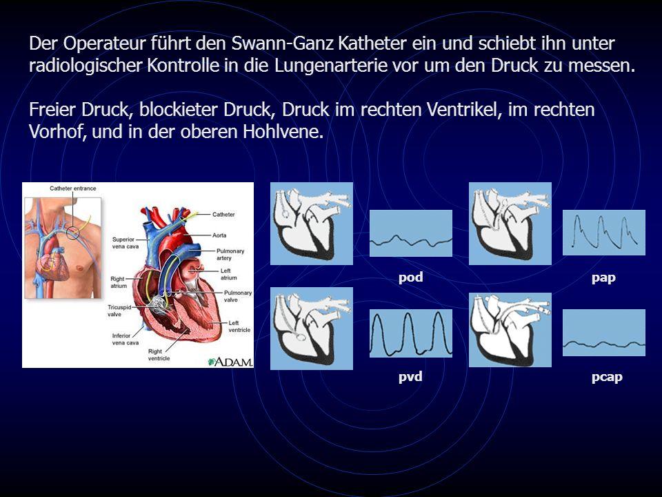 Der Operateur führt den Swann-Ganz Katheter ein und schiebt ihn unter