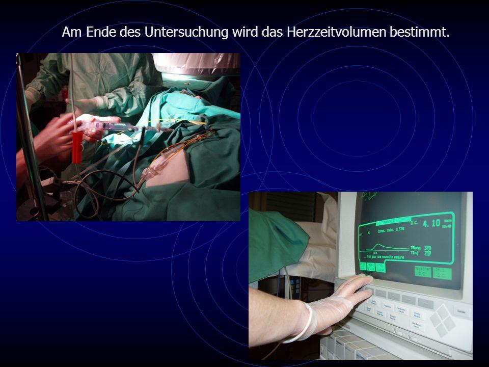 Am Ende des Untersuchung wird das Herzzeitvolumen bestimmt.