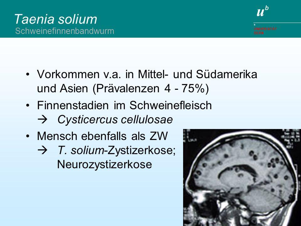 Taenia solium Schweinefinnenbandwurm. Vorkommen v.a. in Mittel- und Südamerika und Asien (Prävalenzen 4 - 75%)