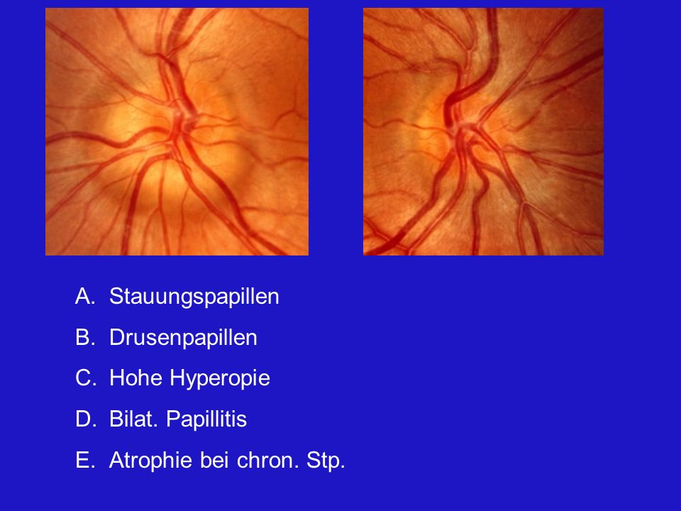 Stauungspapillen Drusenpapillen Hohe Hyperopie Bilat. Papillitis Atrophie bei chron. Stp.
