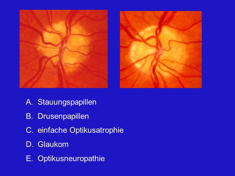 Stauungspapillen Drusenpapillen einfache Optikusatrophie Glaukom Optikusneuropathie