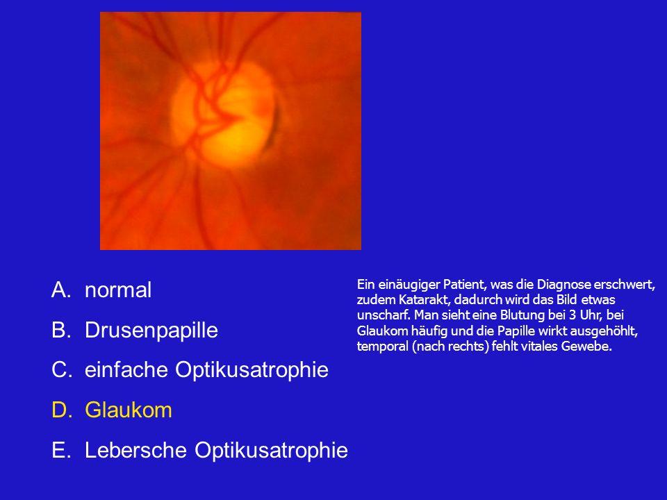 einfache Optikusatrophie Glaukom Lebersche Optikusatrophie