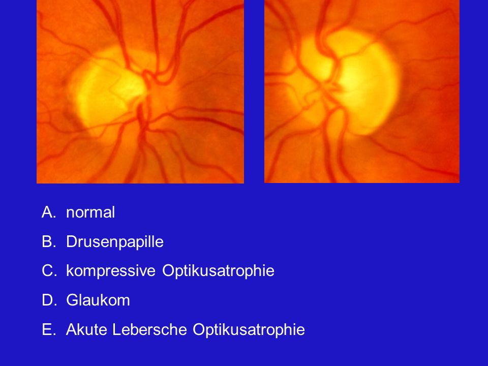 normal Drusenpapille kompressive Optikusatrophie Glaukom Akute Lebersche Optikusatrophie