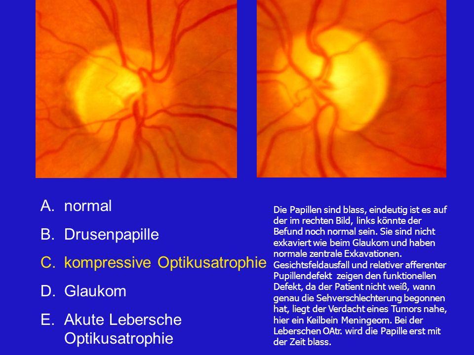 kompressive Optikusatrophie Glaukom Akute Lebersche Optikusatrophie