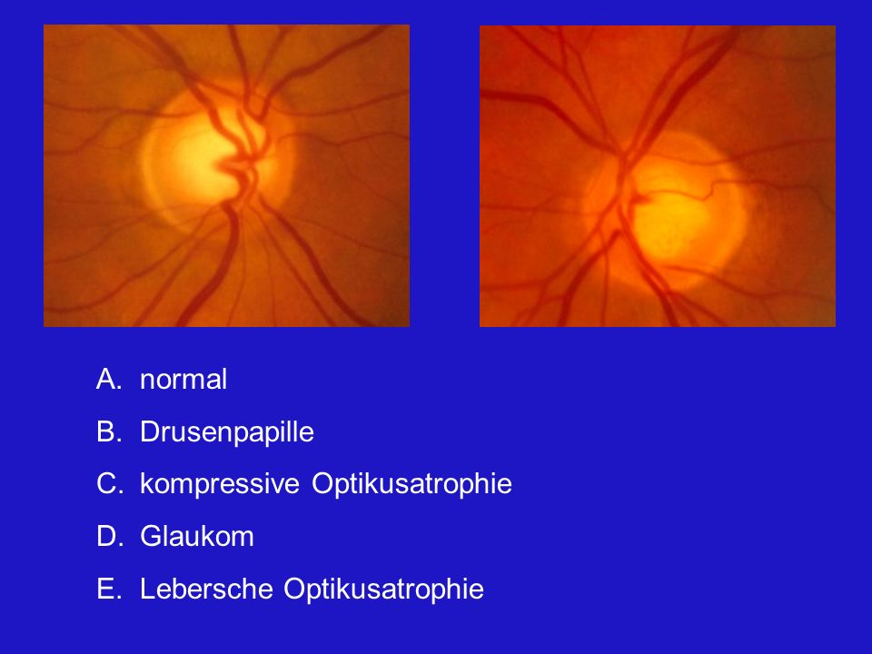 normal Drusenpapille kompressive Optikusatrophie Glaukom Lebersche Optikusatrophie