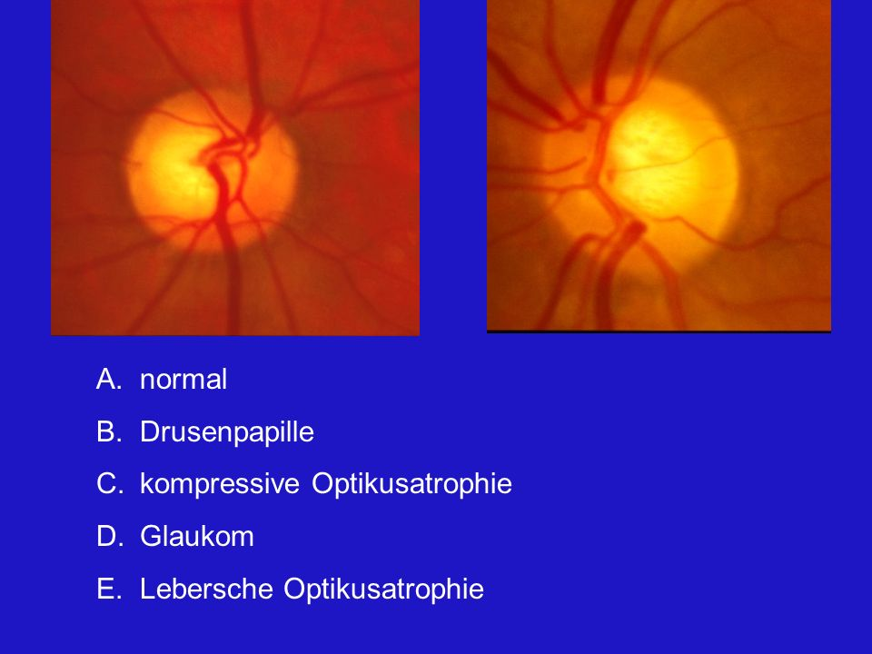 normal Drusenpapille kompressive Optikusatrophie Glaukom Lebersche Optikusatrophie