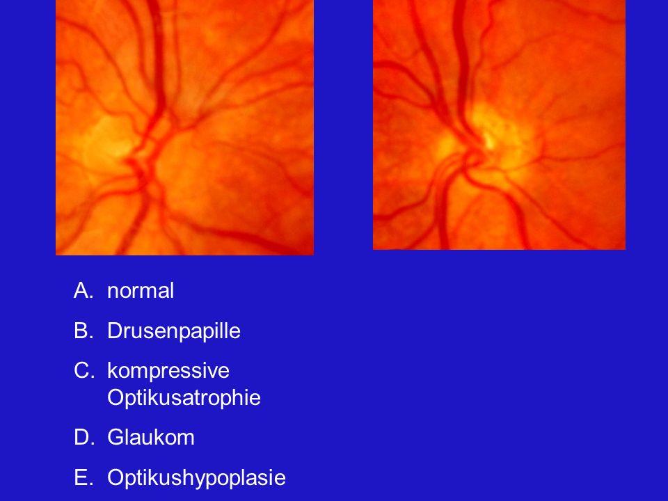 normal Drusenpapille kompressive Optikusatrophie Glaukom Optikushypoplasie