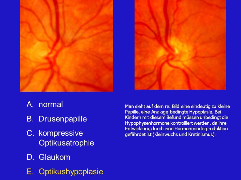 kompressive Optikusatrophie