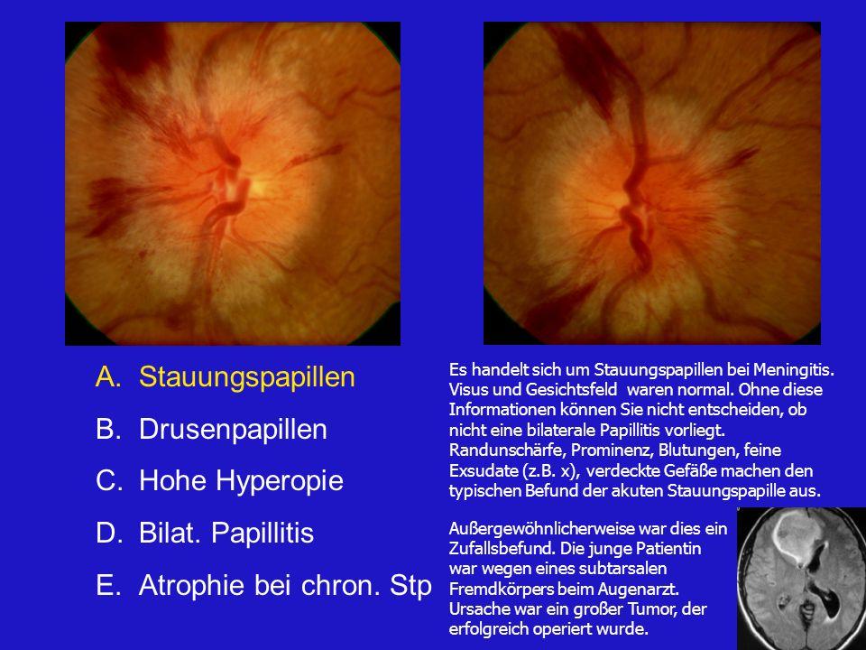 Stauungspapillen Drusenpapillen Hohe Hyperopie Bilat. Papillitis