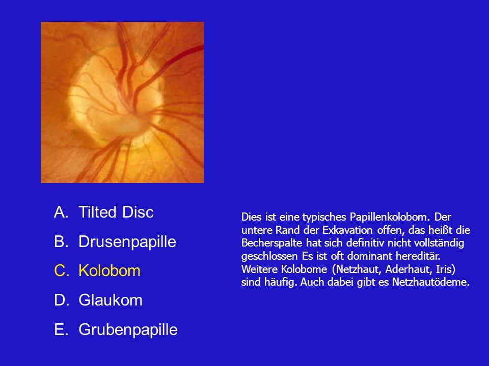 Tilted Disc Drusenpapille Kolobom Glaukom Grubenpapille