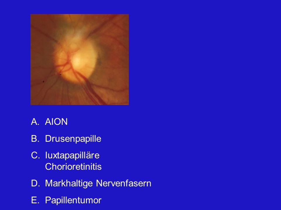 AION Drusenpapille Iuxtapapilläre Chorioretinitis Markhaltige Nervenfasern Papillentumor