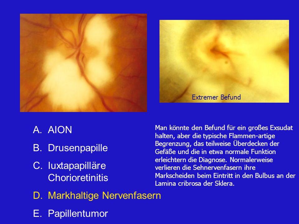 Iuxtapapilläre Chorioretinitis