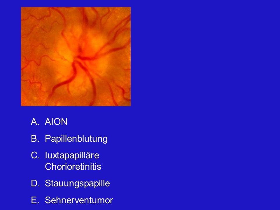 AION Papillenblutung Iuxtapapilläre Chorioretinitis Stauungspapille Sehnerventumor