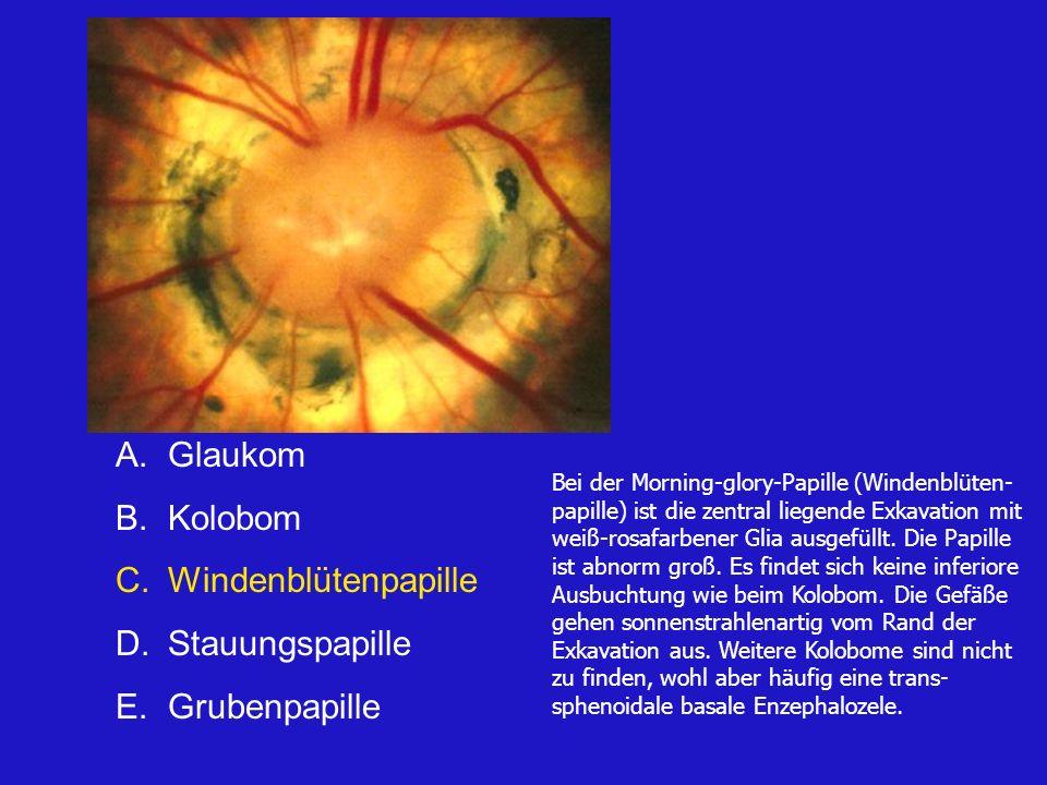 Glaukom Kolobom Windenblütenpapille Stauungspapille Grubenpapille