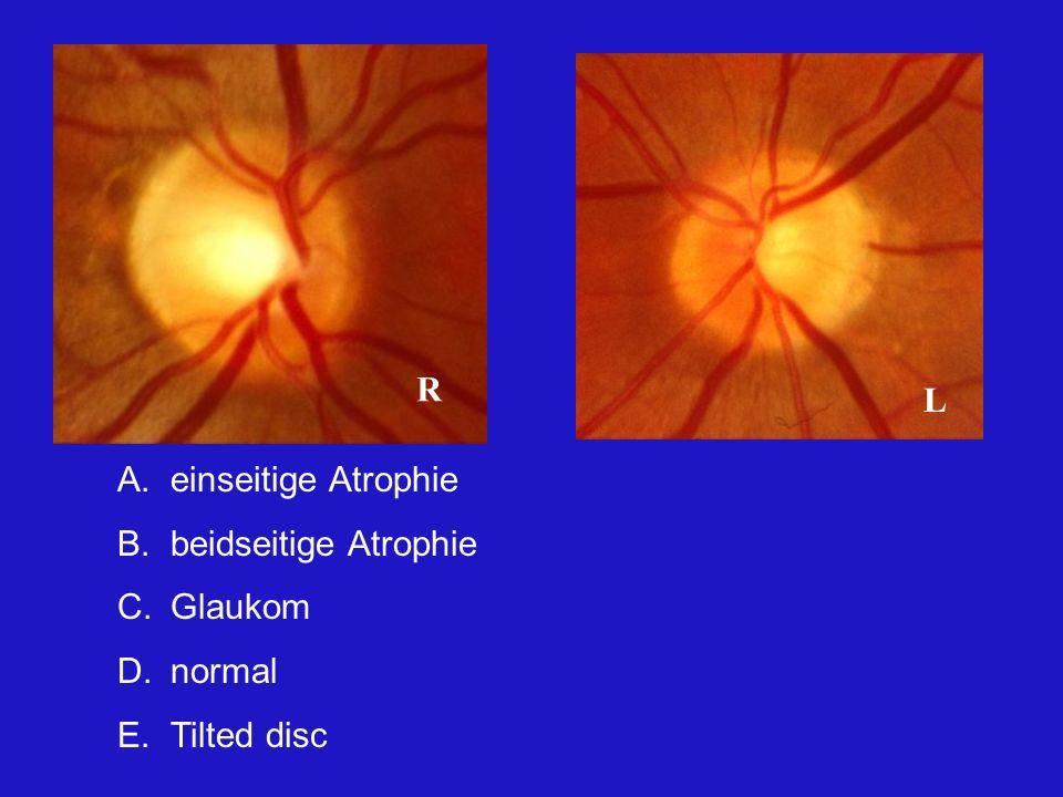 R L einseitige Atrophie beidseitige Atrophie Glaukom normal Tilted disc