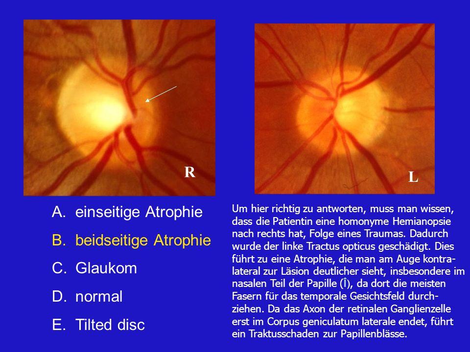 R L einseitige Atrophie beidseitige Atrophie Glaukom normal