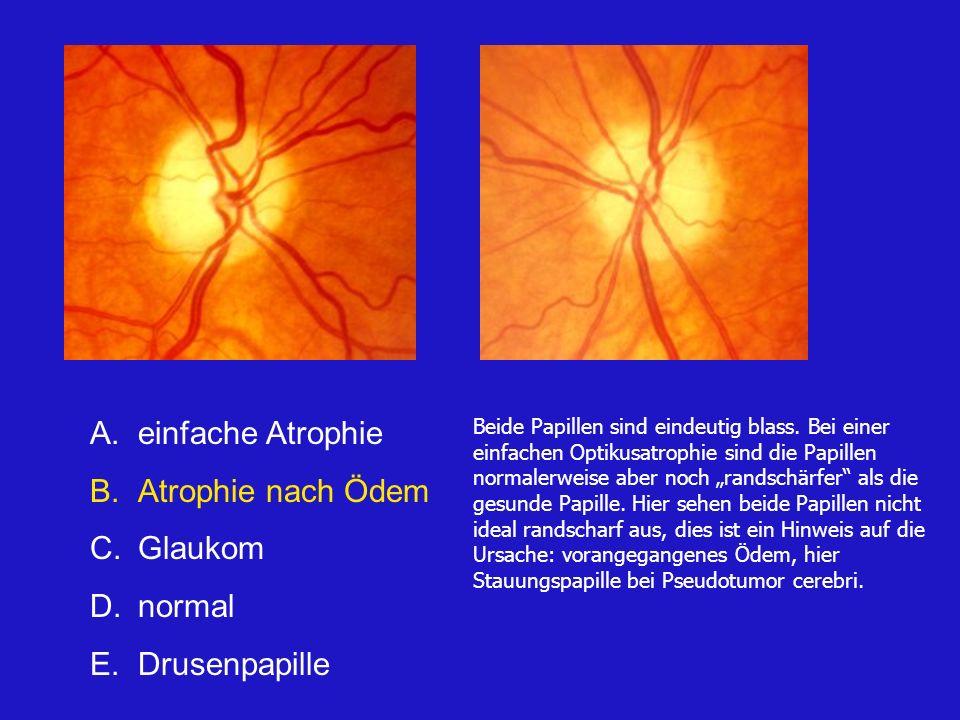 einfache Atrophie Atrophie nach Ödem Glaukom normal Drusenpapille