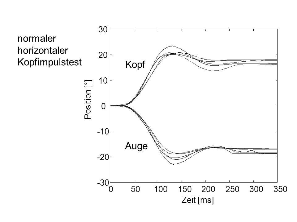 normaler horizontaler Kopfimpulstest