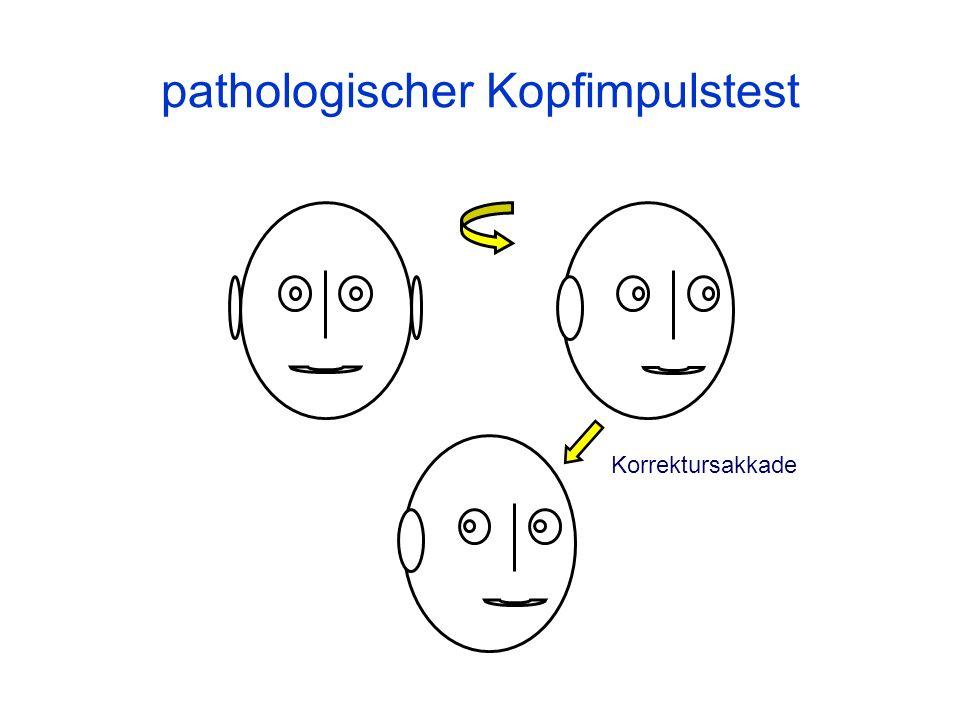 pathologischer Kopfimpulstest