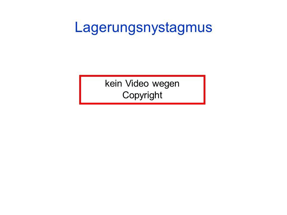 kein Video wegen Copyright