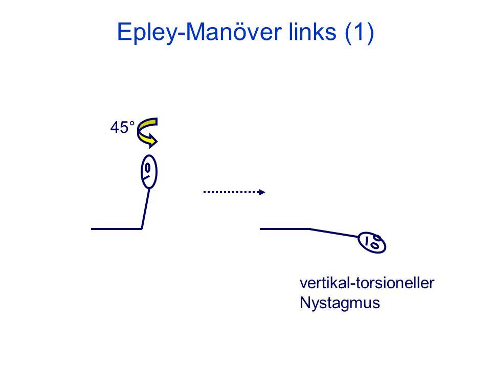 Epley-Manöver links (1)