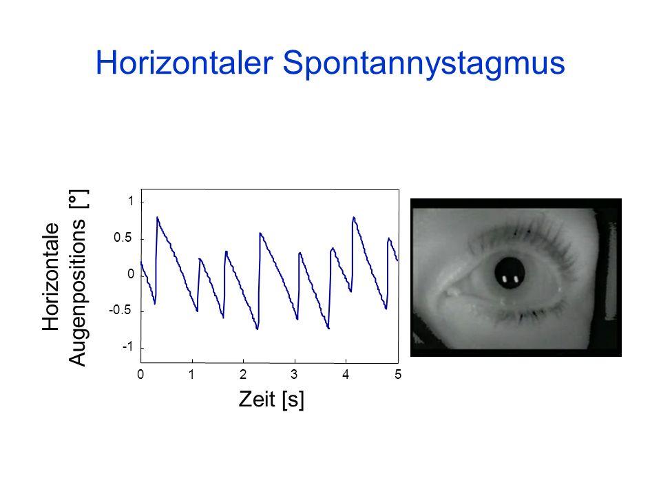 Horizontaler Spontannystagmus