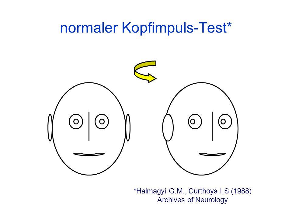 normaler Kopfimpuls-Test*