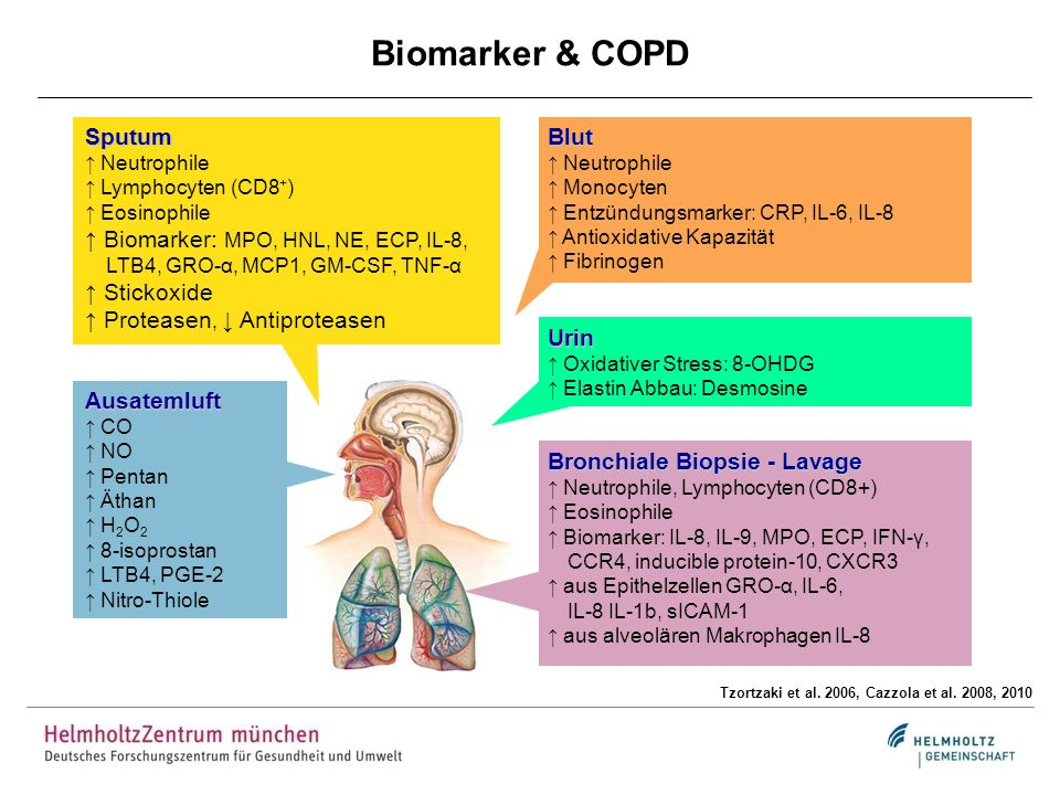 Biomarker & COPD Sputum