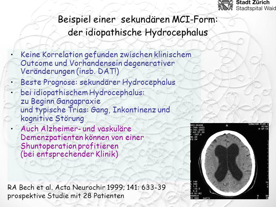 Beispiel einer sekundären MCI-Form: der idiopathische Hydrocephalus