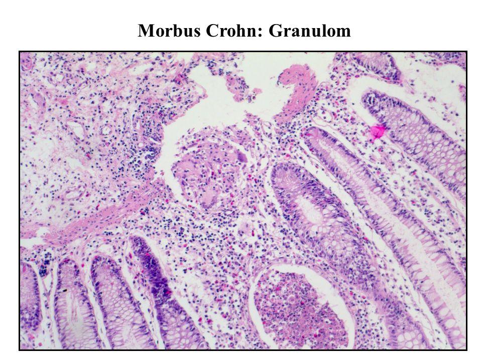 Morbus Crohn: Granulom