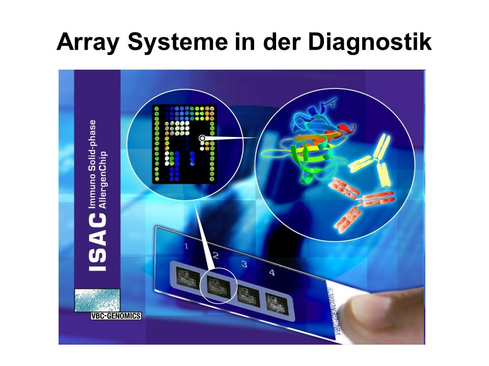 Array Systeme in der Diagnostik