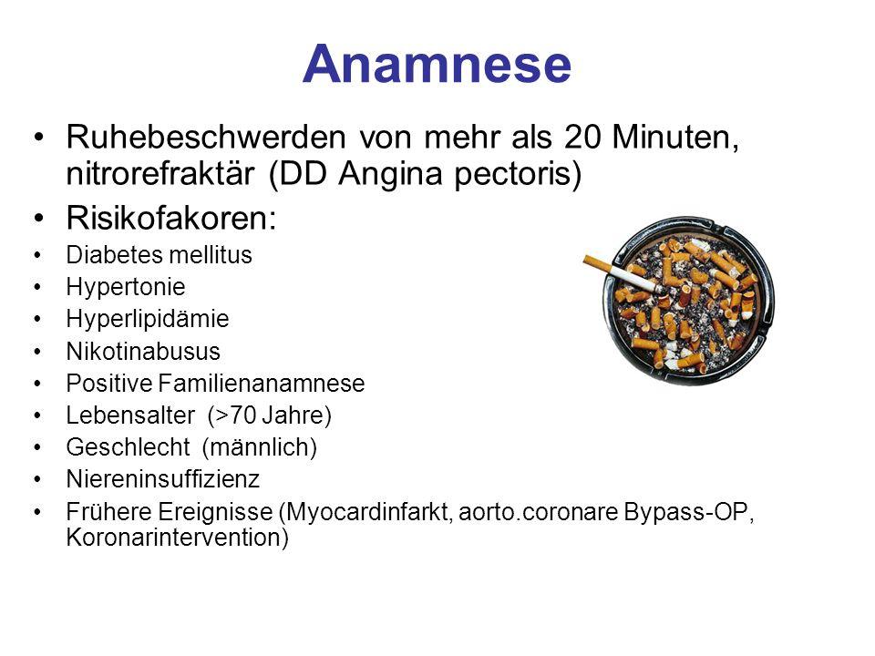 Anamnese Ruhebeschwerden von mehr als 20 Minuten, nitrorefraktär (DD Angina pectoris) Risikofakoren: