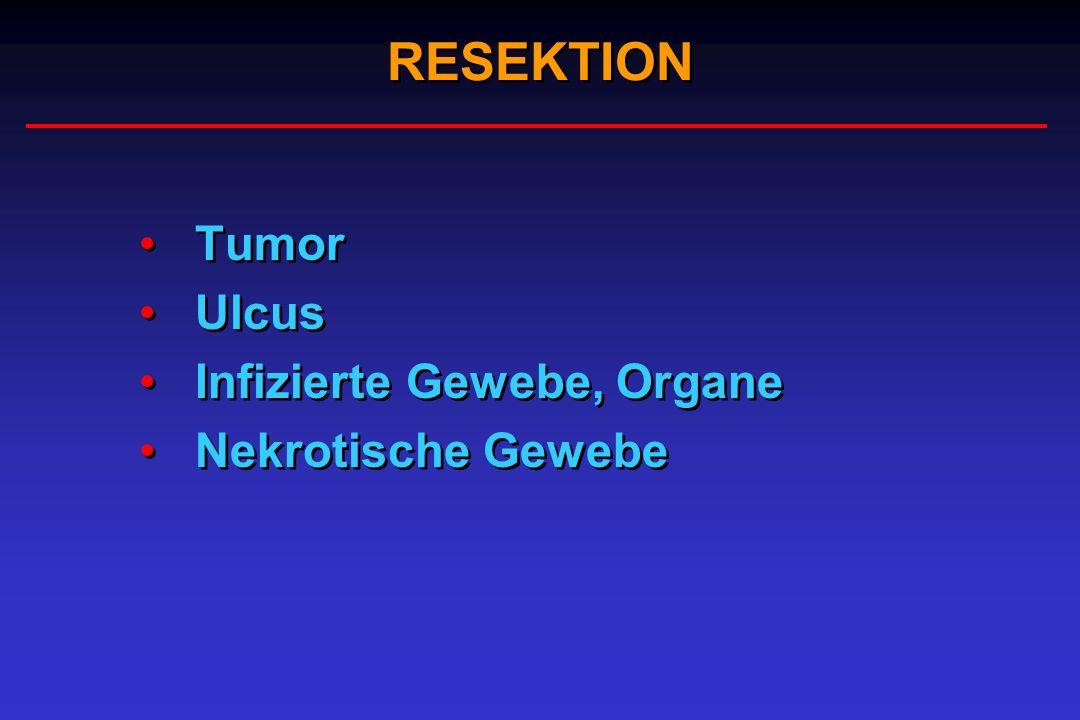 RESEKTION Tumor Ulcus Infizierte Gewebe, Organe Nekrotische Gewebe