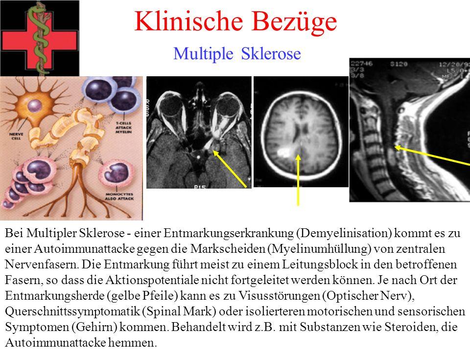 Klinische Bezüge Multiple Sklerose