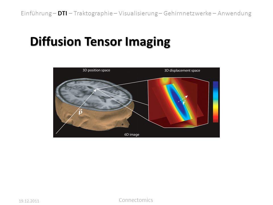 Diffusion Tensor Imaging