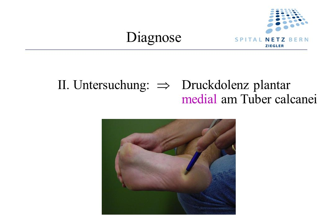 Diagnose II. Untersuchung:  Druckdolenz plantar medial am Tuber calcanei