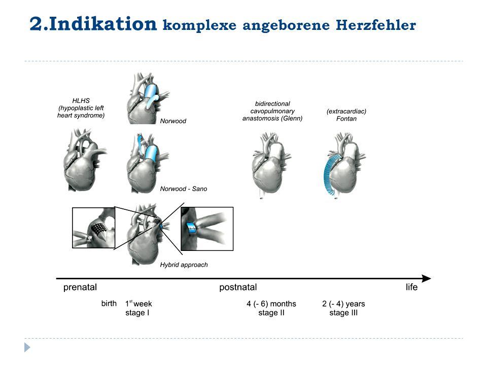 2.Indikation komplexe angeborene Herzfehler