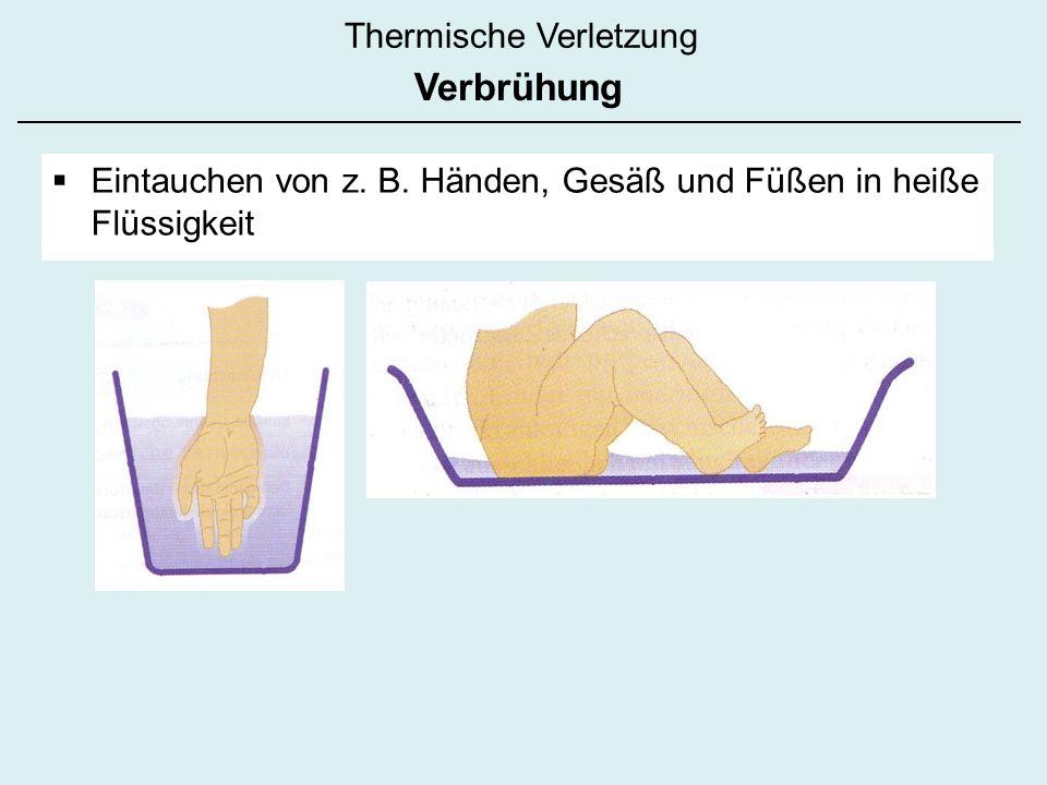 Thermische Verletzung